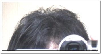 3ヶ月後の髪